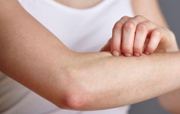 Cách điều trị sốt phát ban ngứa ở người lớn