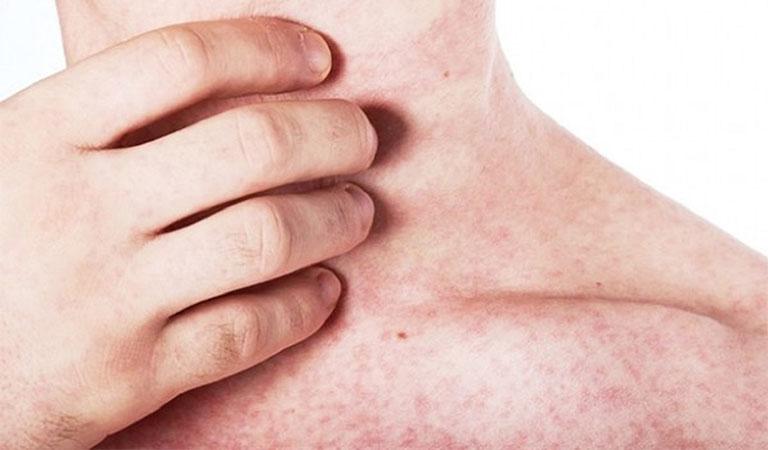 Một số cách giảm ngứa khi phát ban tại nhà hiệu quả nhất