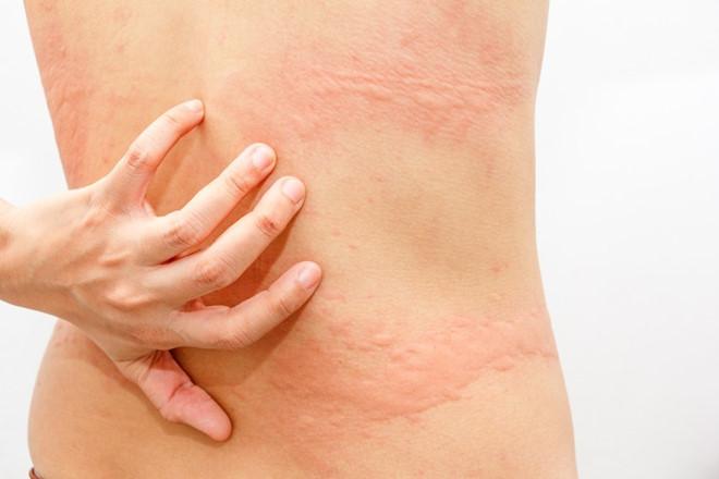 Phát ban dưới da không ngứa sự tiềm ẩn nguy hiểm và cách trị